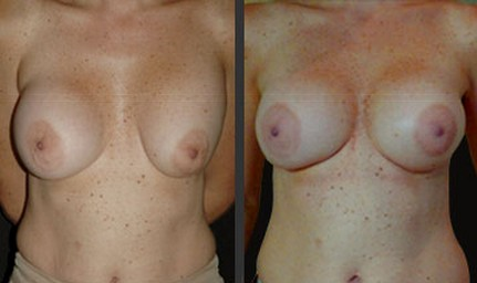 Breast correction after implant rupture