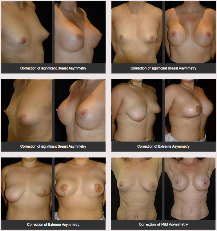 Before and after photos of breasty asymmetry correction