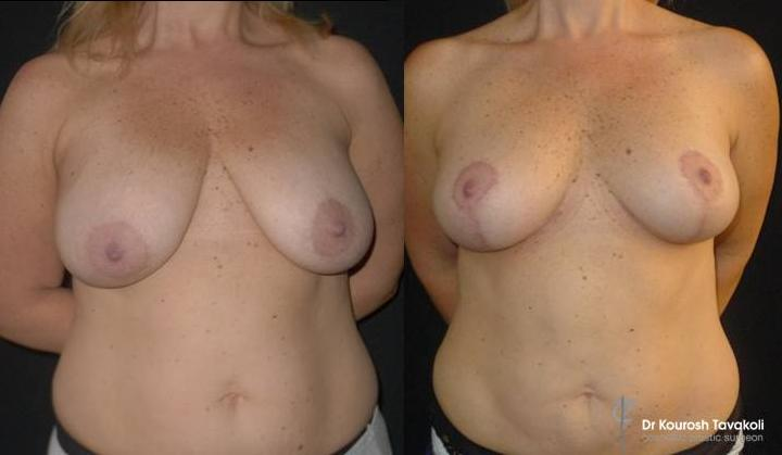 37yo, Bilateral mastopexy and breast reduction with anchor scar. Fat grafting to bilateral upper breast pole. Patient photographed 8 weeks post op.