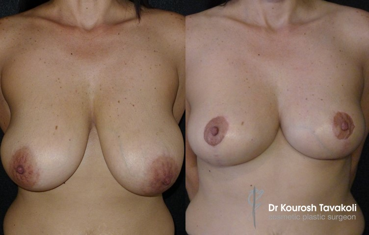 44yo female, bilateral breast reduction, modified anchor scar, no implant.