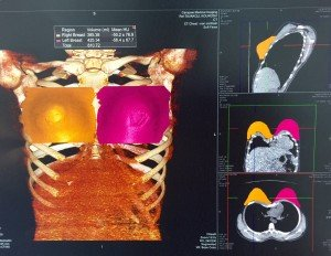 CT Scan of Breast Asymmetry Correction