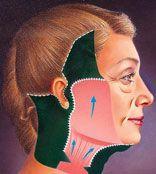 Face Lift Neck Lift Procedure Diagram 3 By Dr Kourosh Tavakoli
