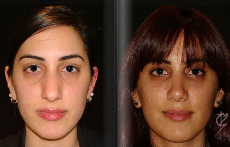 Facial Fat Graft Case Study 2 - Front View