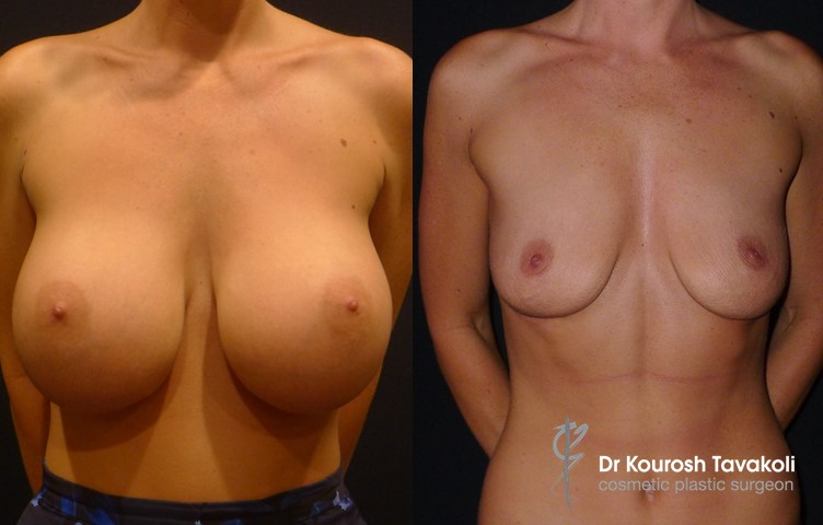 Bilateral breast implant removal.