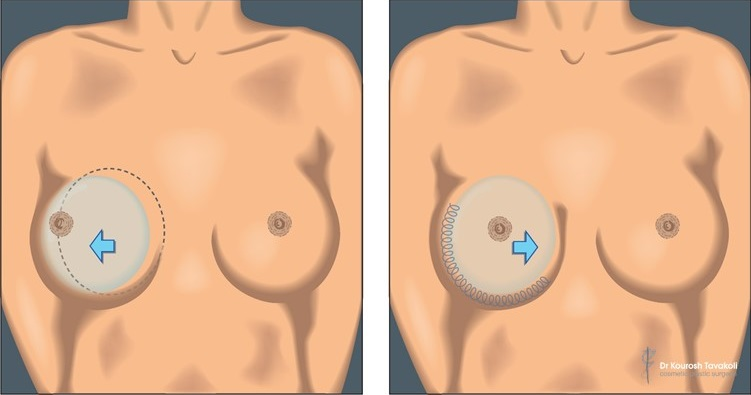 Internal bra diagram. Technique pioneered by Dr Kourosh Tavakoli.