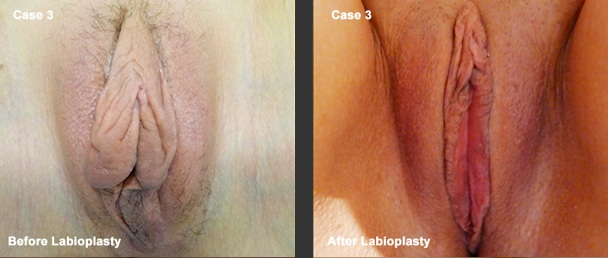 Labiaplasty-Surgery-Before-and-After-Case-3-photo-at-Suite-1-Level-1-376-New-South-Head-Road-Double-Bay-NSW-2028