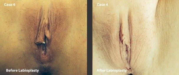 Labiaplasty-Surgery-Before-and-After-Case-4-photo-at-Suite-1-Level-1-376-New-South-Head-Road-Double-Bay-NSW-2028