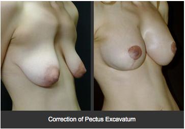 Pectus Excavatum Correction