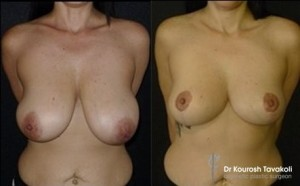 Auto-Augmentation: Bilateral mastopexy with no implants achieving a smaller, perkier bust.