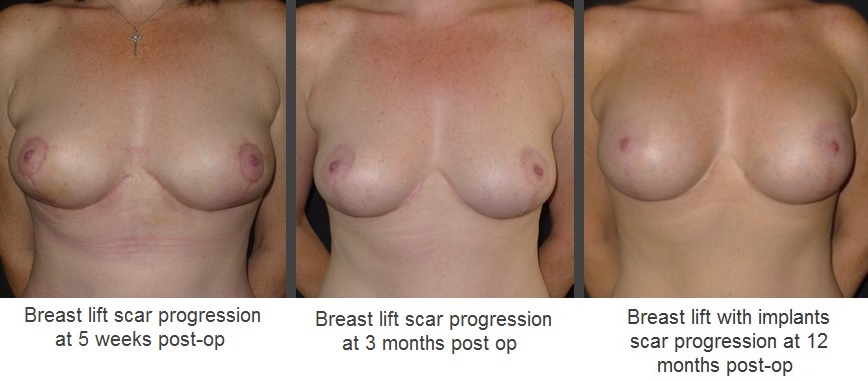 Scarring progress after breast lift / mastopexy operation