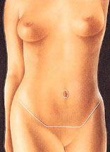 Tummy tuck abdominoplasty operation clinical diagram 4