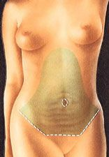 Tummy tuck abdominoplasty operation clinical diagram 2