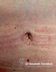 Tummy tuck abdominoplasty scarring photo