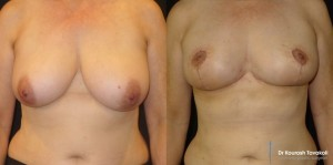 Bilateral Breast Reduction and fat grafting to upper pole.