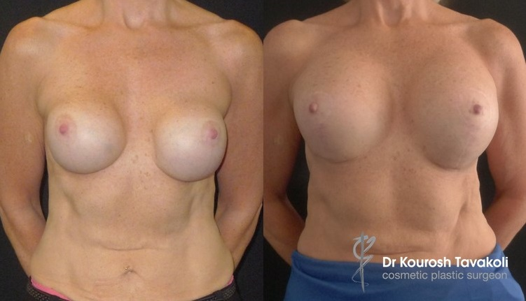 Patient presented with capsular contracture, re-augmentation entailed Benelli Mastopexy, pocket change from Subglandular to Submuscular, and upsize to CPG 380cc-333 anatomical implants, placed in dual plane pocket. Internal bra technique used to lift and re-position implant pocket.