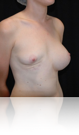 before-breast-reconstruction-after-removal-of-infected-implant-by-Dr-Kourosh-Tavakoli-in-Double-Bay-NSW-2028