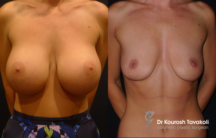 29yo female, bilateral removal of breast implants.