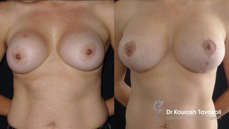 43yo female, removal of implants, followed by bilateral breast reduction & lift using CPG Mentor 445cc-332, anatomical implants.