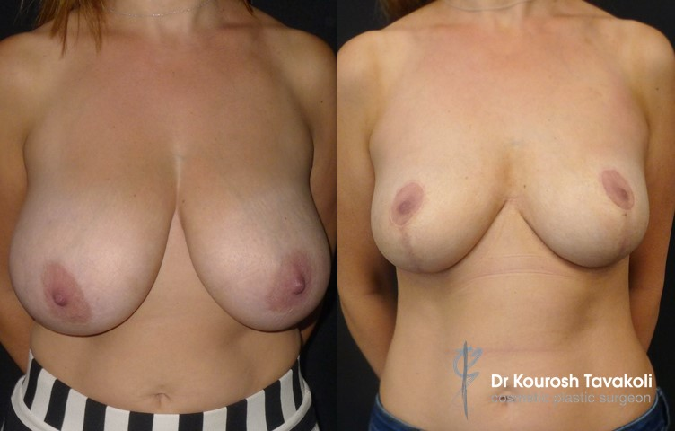 42yo, Bilateral mastopexy and breast reduction with anchor scar. Originally H cup size, now a D cup.