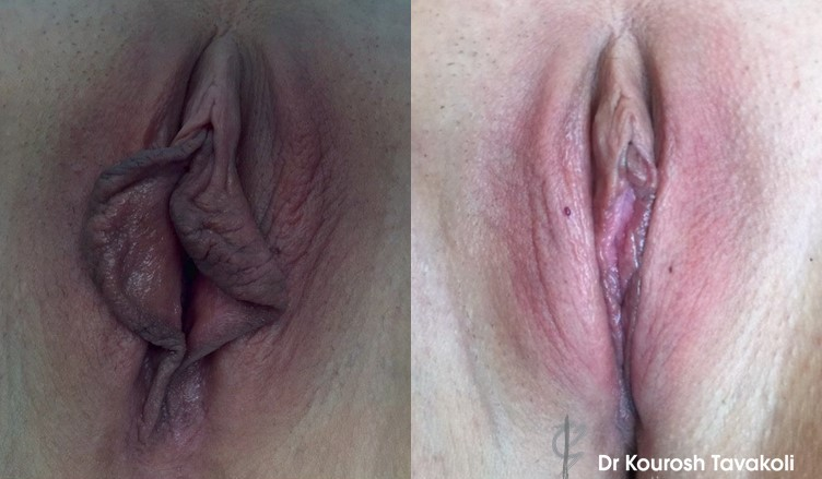 Labiaplasty and Clitoral Hood reduction surgery by Dr Tavakoli, performed to correct excess skin to Labia Minora.