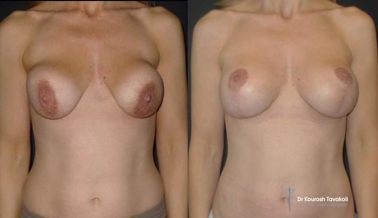 Bilateral Re-augmentation to correct capsular contracture and change of pocket from subglandular to submuscular. Bilateral breast lift was performed to remove excess skin and reposition and resize the areola.
