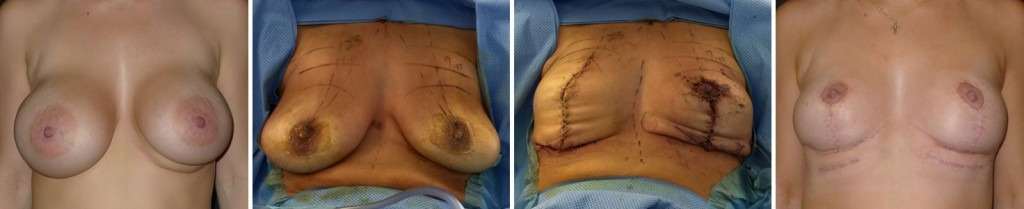 Case Study: Bilateral Breast Implant Explantation, Bilateral Breast Lollypop Mastopexy performed, Mentor Siltex Round HP 500cc Implants Removed.