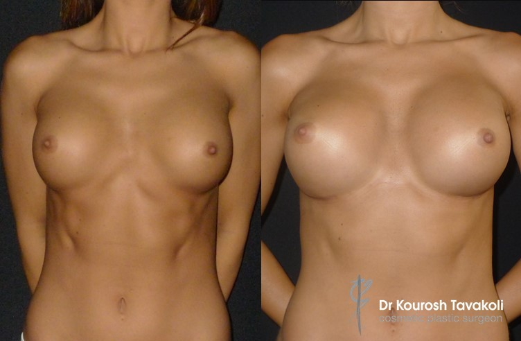 Reaugmentation to correct excessive Cleavage Cap using permanent internal sutures and internal bra technique.