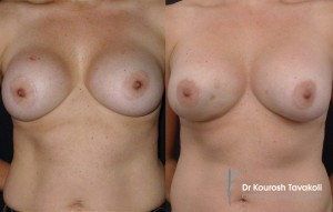 Bilateral removal and replacement of breast implants. Pocket change from subglandular to submuscular using the internal bra technique to create lower pole fullness.
