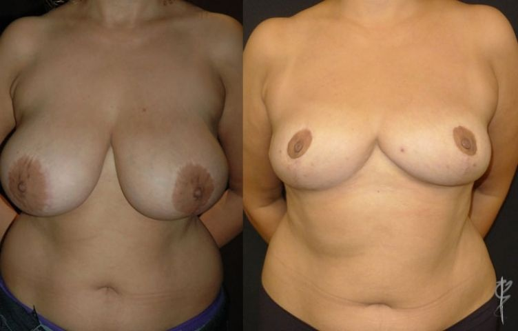 Breast Reduction - Revision of another surgeon's work. Dr Tavakoli utilised the anchor scar.