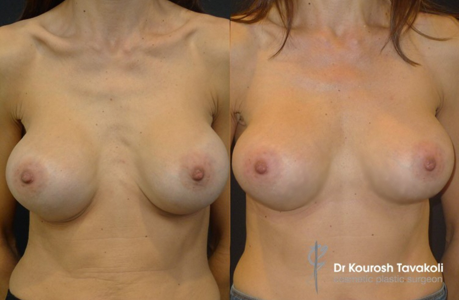 Fat grafting combined with breast implants before and after photo