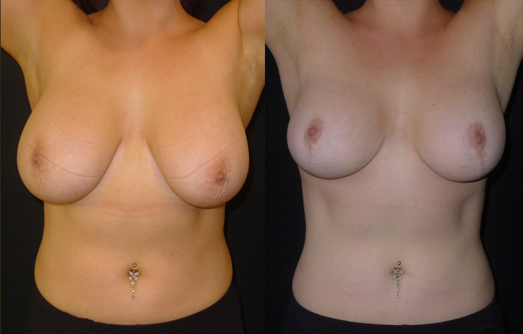 21yo female, nil pregnancies,suffering severe back, neck and shoulder pain, discomfort in clothing, Ptosis grade 4. Anchor technique, bilateral breast reduction. Breast tissue removed right: 240g left: 120g and 20mls of Liposuction. Height 5'4 and weighing 66kg.