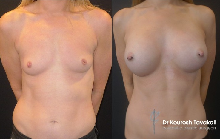 Breast augmentation performed using CPG 332-305cc mentor, tall height, moderate plus projection, anatomical implants.