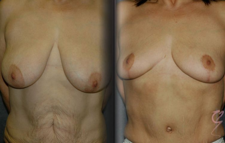 Before and After Reduction Mammaplasty and Abdominoplasty.
