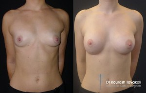Implants and fat grafting to the sternum before and after photo 2