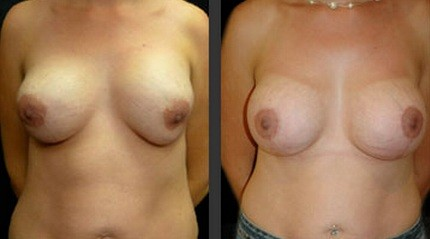 Bilateral capsular contracture breast implant exchange and mastopexy