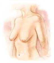 Breast lift before clinical diagram
