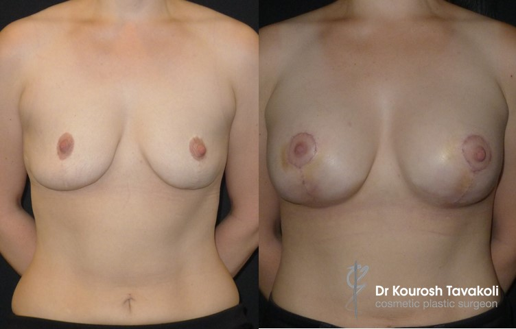 34yo female, nil pregnancies, Breast Augmentation 3 years after breast reduction, CPG 275cc high profile round silicone gel implants, dual plane pocket. Internal bra technique used to secure new implant pocket.