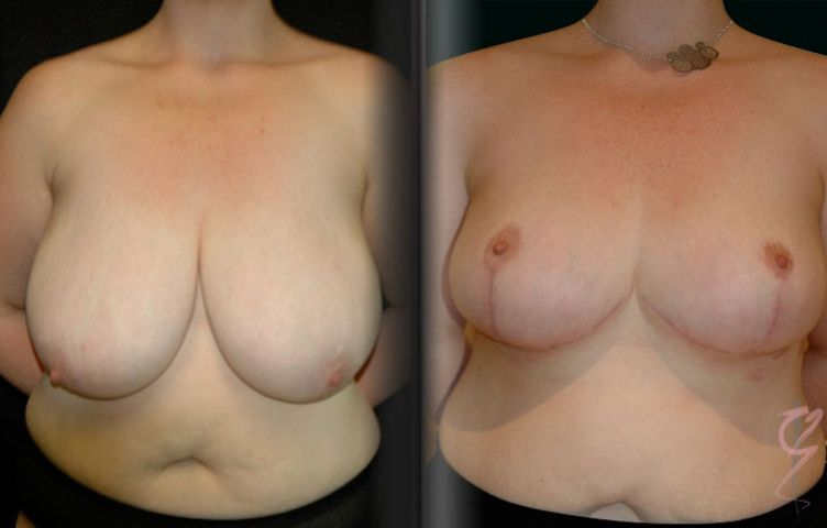 Breast Reduction.