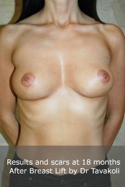 Clinical sequence of mastopexy breast lift 3