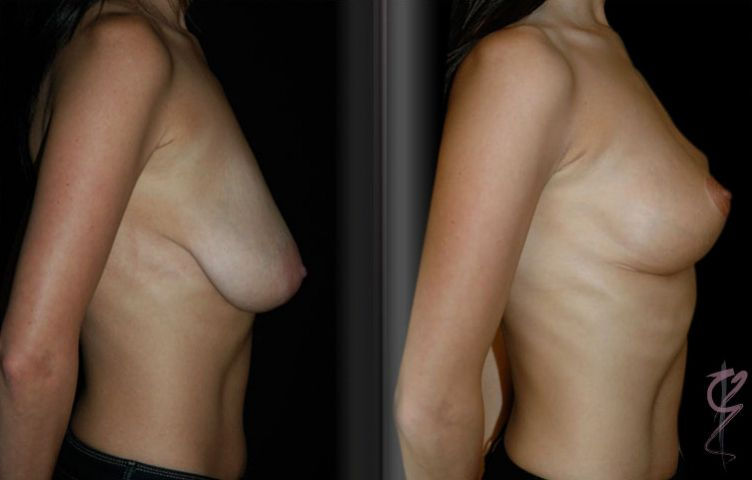 "Le Jour (vertical ""lollypop"" scar) Mastopexy or Breast Lift."