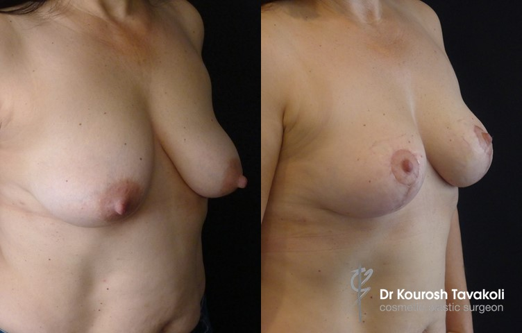 40yo female, bilateral breast reduction, modified anchor scar, no implant.