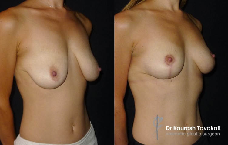 32yo female, bilateral breast reduction, modified anchor scar, no implant.