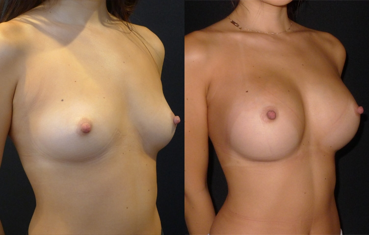 29 yo Asian female, nil pregnancies, asymmetrical breasts, moderate chest wall, Round silicone gel textured implants size right 325cc size left 300cc Siltex, moderate plus projection, Dual plane pocket, 160cm tall, weight 46kg.