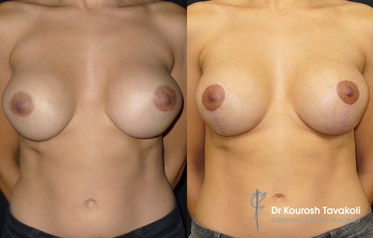 35yo female, bilateral removal and replacement of breast implants combined with bilateral lolly-pop mastopexy to correct bottoming out. Internal bra technique used to secure implant pocket and create a more defined cleavage.