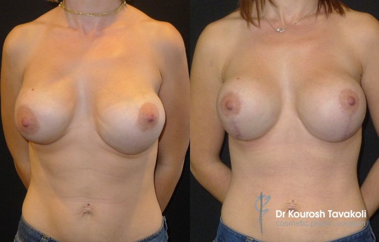 28yo female, bilateral removal and replacement of breast implants combined with bilateral lolly-pop mastopexy and fat grafting to sternum. Internal bra technique used to bring implants closer to the midline creating more defined cleavage.