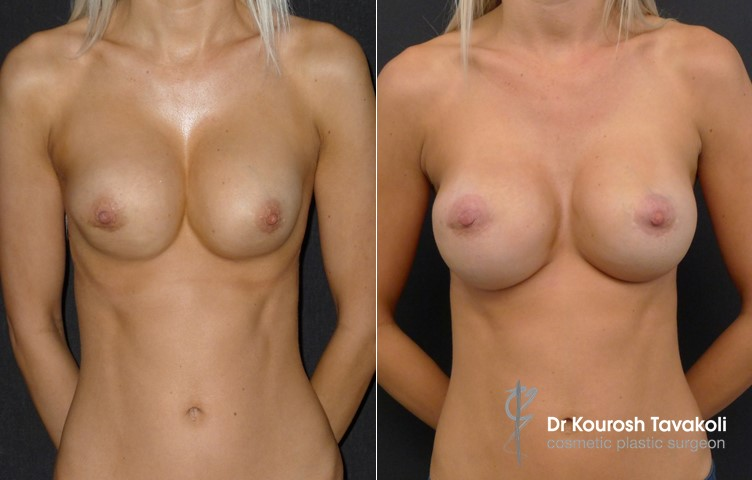 30yo female, bilateral removal and replacement of breast implants combined with symmastia repair. Internal bra technique used to re-position implants further apart, creating better separation and more defined cleavage.