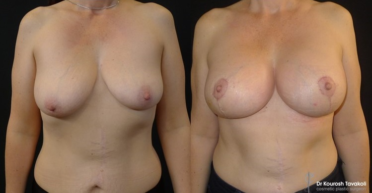 Bilateral Breast Augmentation and Lollypop Mastopexy. Asymmetry corrected through mastopexy and different sized implants. Right breast: Mentor CPG 333- 330cc anatomical implant. Left breast: Mentor CPG 333-380cc anatomical implant, both placed in a dual plane, submuscular pocket. Patient photographed at 4 weeks post op.