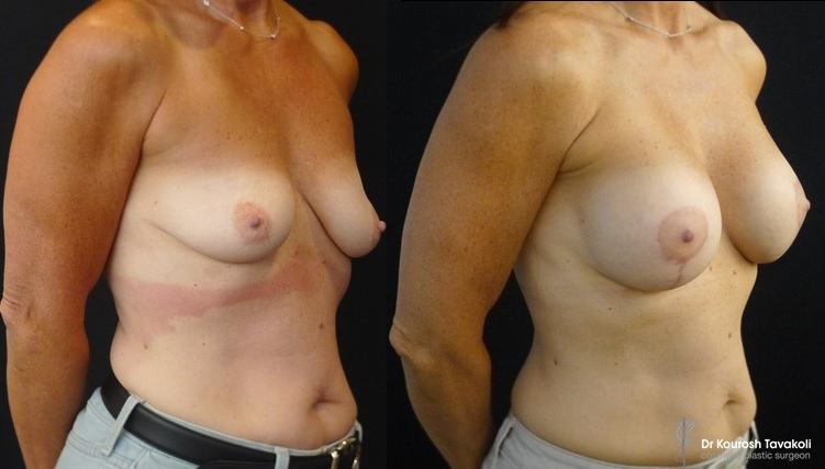 Bilateral Breast Augmentation and Lollypop Mastopexy. Mentor CPG 322- 330cc anatomical implants placed in a dual plane, submuscular pocket. Patient photographed at 5 months post op.