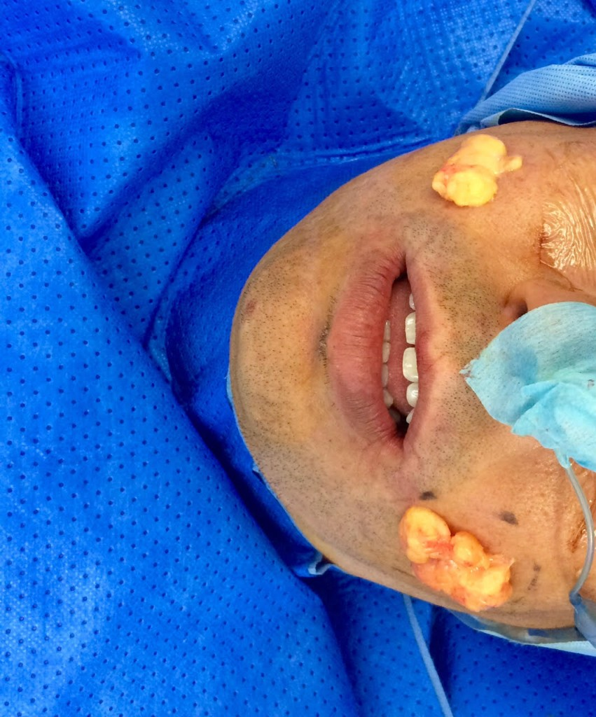 Buccal Fat Pad Removal - Operative Sequence 3