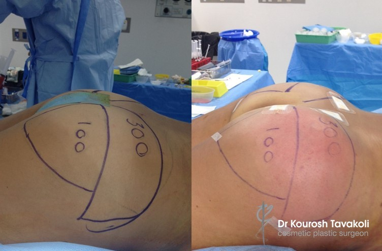 Buttock Augmentation with Fat Transfer 800 Grams